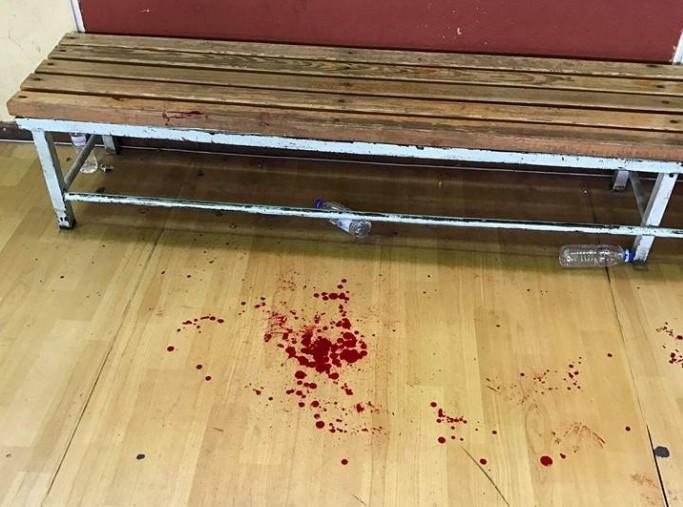 blood_parke_basketball